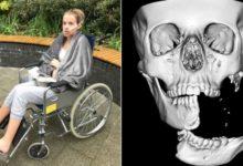 Photo of Британский хирург восстановил девушке оторванную челюсть